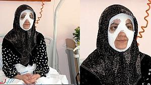 Bomba Gibi Patlayan Düdüklü Tencere Genç Kadına Dehşeti Yaşattı